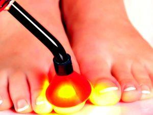Смотрите ВИДЕО --- эффективный способ лечение грибка на ногах. Ярмарка Мастеров - ручная работа, handmade.