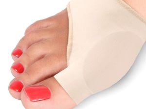 Шишки на ноге откуда ? Лечение вальгусной деформации. Ярмарка Мастеров - ручная работа, handmade.