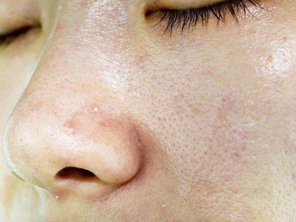 Уход за жирной кожей лица   Ярмарка Мастеров - ручная работа, handmade